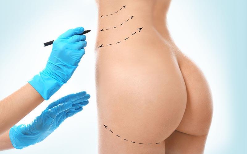 水刀抽脂 與相關減脂手術誰優誰劣?| 抽脂的領導品牌
